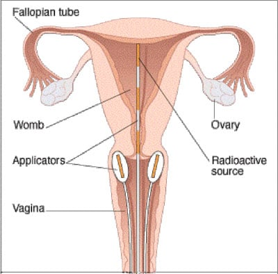 cervical cancer women 39 s health concern : cervix diagram - findchart.co